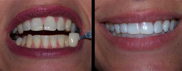 Bleaching repairs stained, yellow teeth