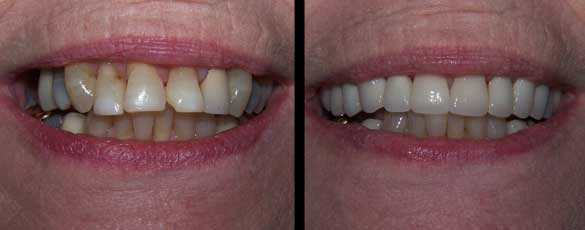 Crowns to restore broken and ground teeth