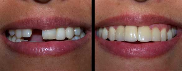 Dental implants repair a missing front tooth